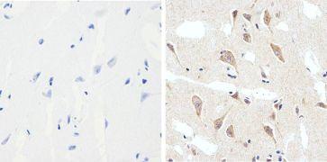 Phospho-Tau (Ser199) Antibody (710124)