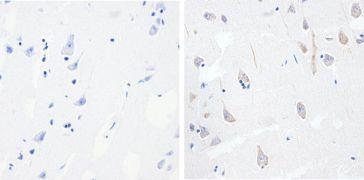 Phospho-Tau (Thr231) Antibody (710126)