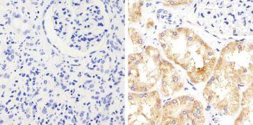STAT2 Antibody (710135)