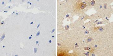 beta Amyloid Antibody (710174)