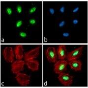 PAX3 Antibody (710178)