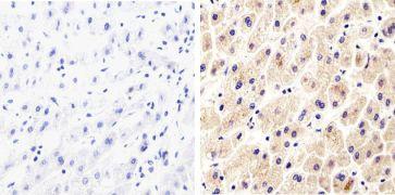 Syndecan 2 Antibody (710183)