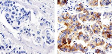 Metadherin Antibody (710202)