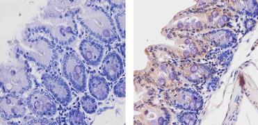 Acetyl-p53 (Lys382) Antibody (710294)