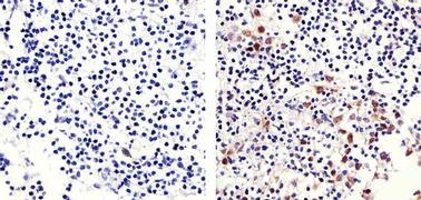 Phospho-Retinoblastoma pSer780 Antibody (710296)