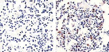 Phospho-Rb (Thr821) Antibody (710314)