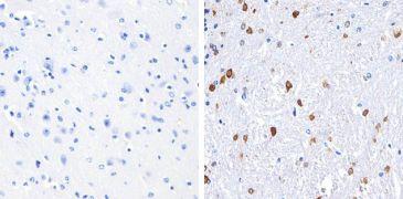 S100B Antibody (710363)