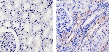 Fibrinogen Antibody (710386)