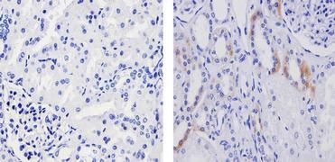 Phospho-TSC2 (Ser939) Antibody (710395)