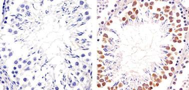 PIM1 Antibody (710504)