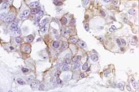 Occludin Antibody (71-1500)