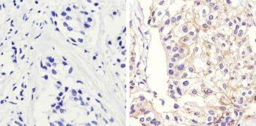 beta Catenin Antibody (71-2700)