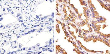 c-Met Antibody (71-8000) in IHC (P)