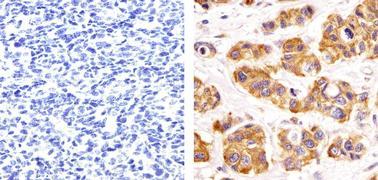 PRMT3 Antibody (730020)