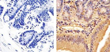 BRD3 Antibody (730024)
