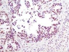 Phospho-HDAC3 (Ser424) Antibody (A16607)