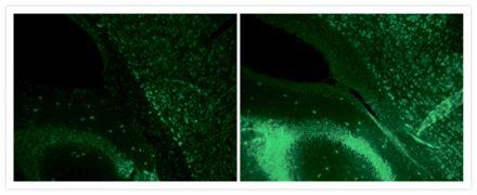 HuC/HuD Antibody (A-21271)