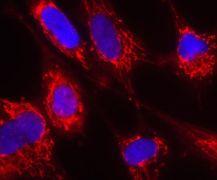 Fumarase Antibody (A21981)