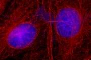 Mouse IgG (H+L) Secondary Antibody (A27027)
