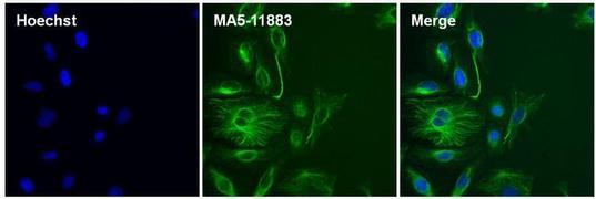 Mouse IgG (H+L) Secondary Antibody (A28175)