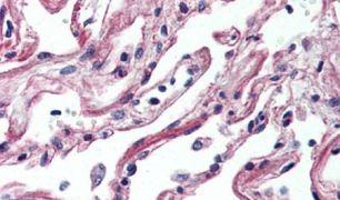 ADORA2A Antibody (PA5-33323)