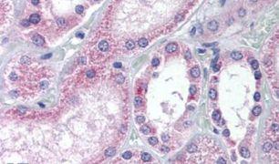 AADAT Antibody (PA5-32646)