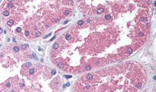 AADAT Antibody (PA5-32647)