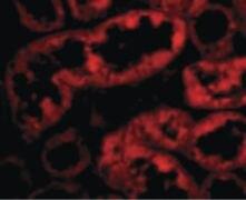 ACE2 Antibody (PA5-20045)