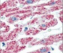 Aconitase 2 Antibody (PA5-11770)