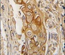 Prostate Specific Acid Phosphatase Antibody (PA5-14545)