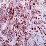 Smooth Muscle Actin Antibody (PA1-37024)