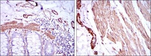 Smooth Muscle Actin Antibody (MA5-15871)