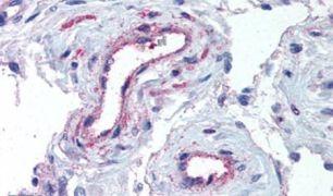 ADAMTS1 Antibody (PA5-32654)