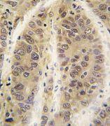 Adenosine Kinase Antibody (PA5-13860)