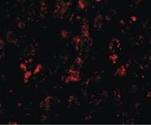 AFAP1L2 Antibody (PA5-20770)