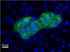 AFP Antibody (MIA1301)