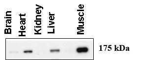 AGL Antibody (PA5-12142)