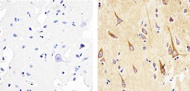 alpha Synuclein Antibody (AHB0261)