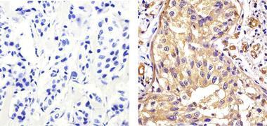 eIF2a Antibody (AHO0802)