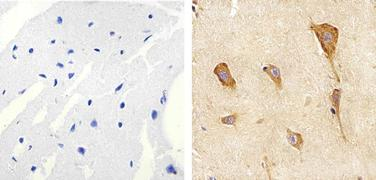JNK1 + JNK2 Antibody (AHO1362)