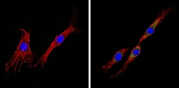 INSR beta Antibody (AHR0271)
