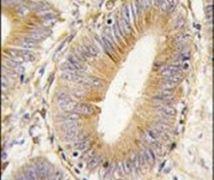 AKR1B1 Antibody (PA5-12316)