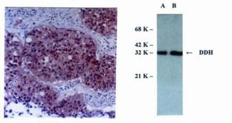 DHDH Antibody (MA1-12599)