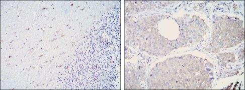 ALDH1A1 Antibody (MA5-15692)
