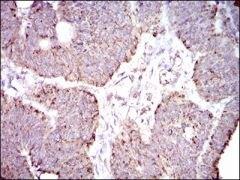 ALDH2 Antibody (MA5-17029)