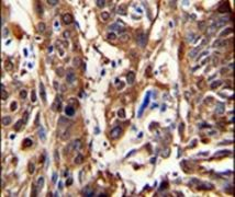 ALDH3A1 Antibody (PA5-15003)