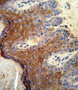 ALOX12 Antibody (PA5-26020)
