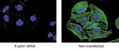 beta Actin Antibody (AM4302)