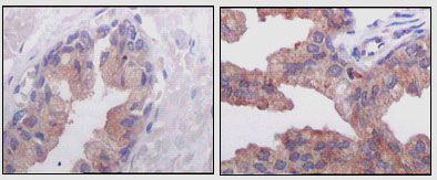 AMACR Antibody (MA5-15360)