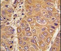 Apolipoprotein A1 Antibody (PA5-14310)